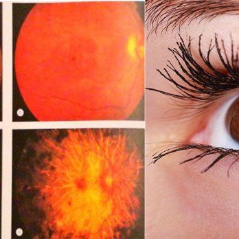 Μέχρι τύφλωση μπορεί να προκαλέσει η χρήση χλωροκίνης και υδροξυχλωροκίνης cover image
