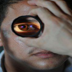 Καταρράκτης η συχνότερη αιτία μείωσης της όρασης cover image