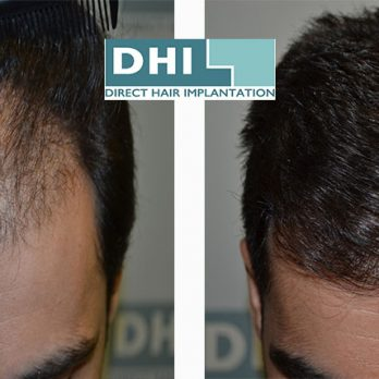Κέρδισε ξανά τα χαμένα σου μαλλιά με την DHI cover image