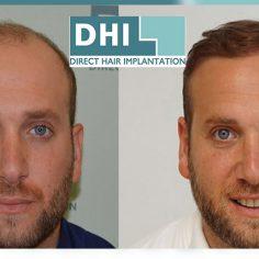 Δωρεάν Διάγνωση Τριχόπτωσης DHI Alopecia DNA test cover image
