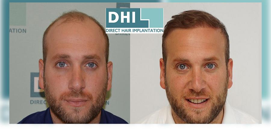 Δωρεάν Διάγνωση Τριχόπτωσης DHI Alopecia DNA test article cover image
