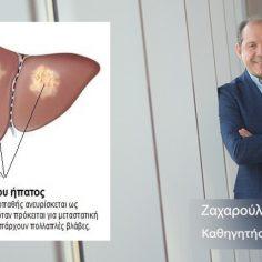 Μεταστατικός καρκίνος στο ήπαρ cover image