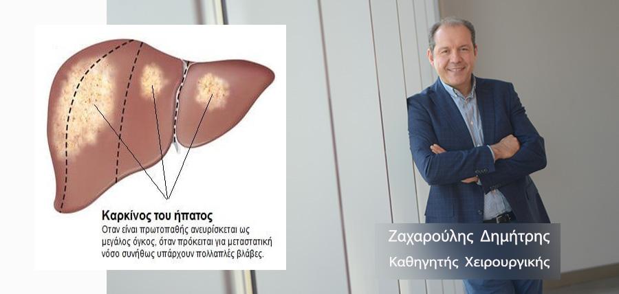 Μεταστατικός καρκίνος στο ήπαρ article cover image