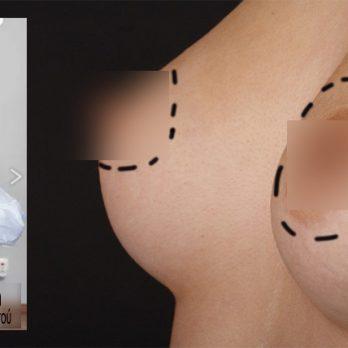 Υποδόρια μαστεκτομή διατήρησης θηλής (Nipple – sparing mastectomy) cover image
