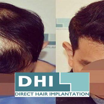 Μεταμόσχευση Μαλλιών DHI Direct ! cover image