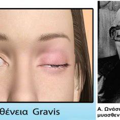 Μυασθένεια Gravis με βλεφαρόπτωση, κόπωση, μυϊκή αδυναμία cover image