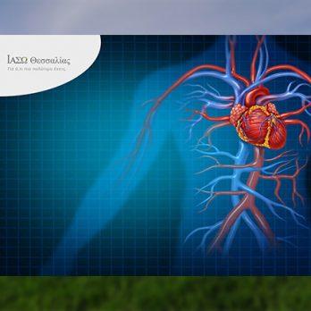 Δημιουργία Α΄ Αγγειοχειρουργικής Κλινικής στο ΙΑΣΩ Θεσσαλίας cover image