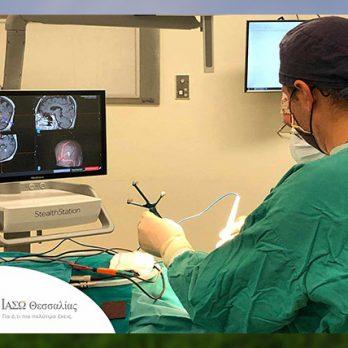 Α΄ Νευροχειρουργική Κλινική ΙΑΣΩ Θεσσαλίας: «1η Νευροχειρουργική επέμβαση με το νέο υπερσύγχρονο σύστημα Νευροπλοήγησης StealthStation S8» cover image