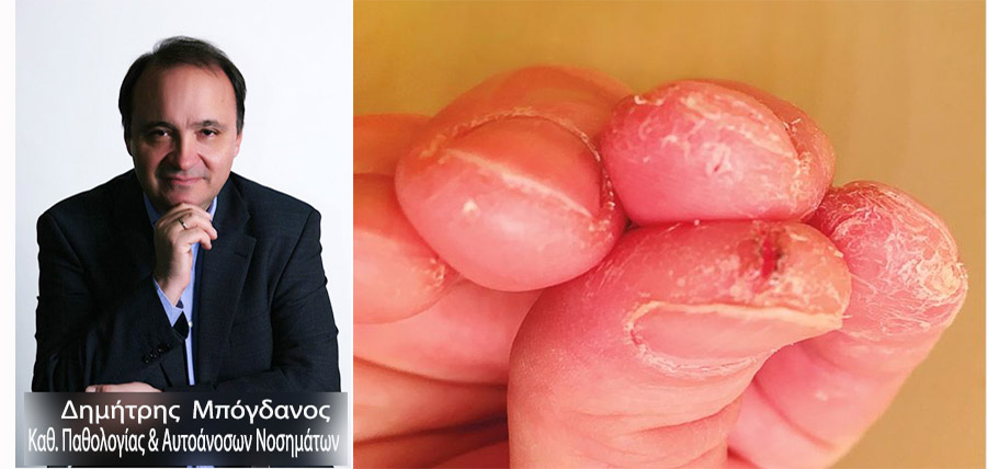 Ποια είναι η διάγνωση; Τα χέρια λένε πάντα την αλήθεια! article cover image